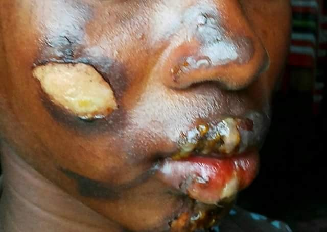 Man burns 13-year-old niece's face and breasts with hot pressing iron over missing N3000 in Bayelsa
