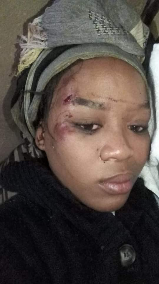 'How my husband of over 10 years ran over me with his car' – South African woman shares disturbing story
